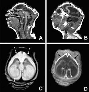 microcefaliascan 1
